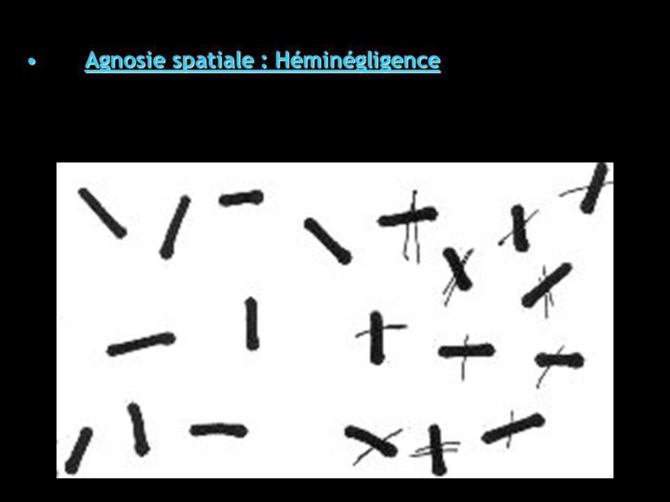 Agnosie spatiale : HéminégligenceAgnosie spatiale : Héminégligence