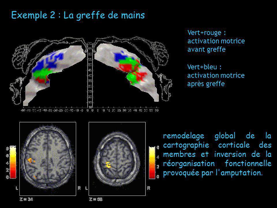 Exemple 2 : La greffe de mains Vert+rouge : activation motrice avant greffe Vert+bleu : activation motrice après greffe remodelage global de la cartog