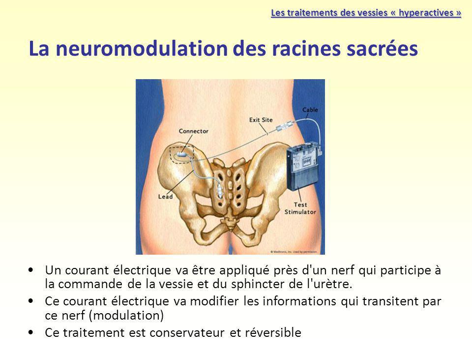 La neuromodulation des racines sacrées Un courant électrique va être appliqué près d'un nerf qui participe à la commande de la vessie et du sphincter
