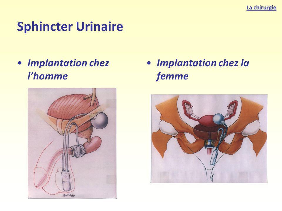 Implantation chez lhomme Implantation chez la femme Sphincter Urinaire La chirurgie