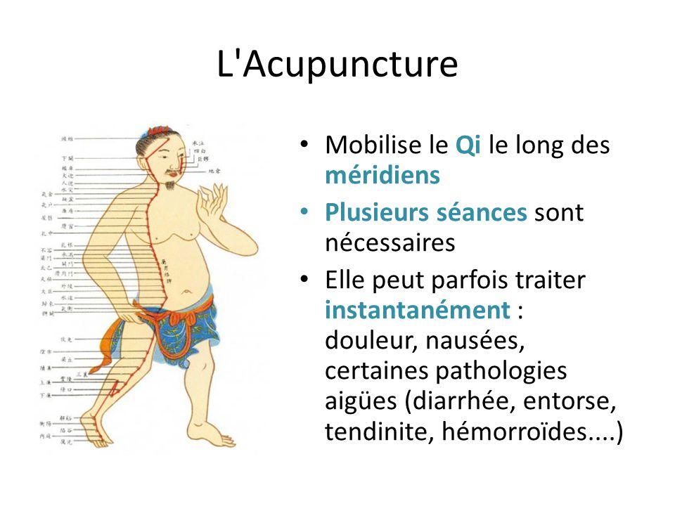 L'Acupuncture Mobilise le Qi le long des méridiens Plusieurs séances sont nécessaires Elle peut parfois traiter instantanément : douleur, nausées, cer