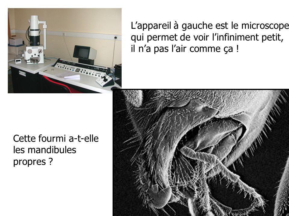 Lappareil à gauche est le microscope qui permet de voir linfiniment petit, il na pas lair comme ça .