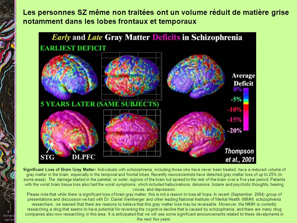 Significant Loss of Brain Gray Matter: Individuals with schizophrenia, including those who have never been treated, have a reduced volume of gray matt
