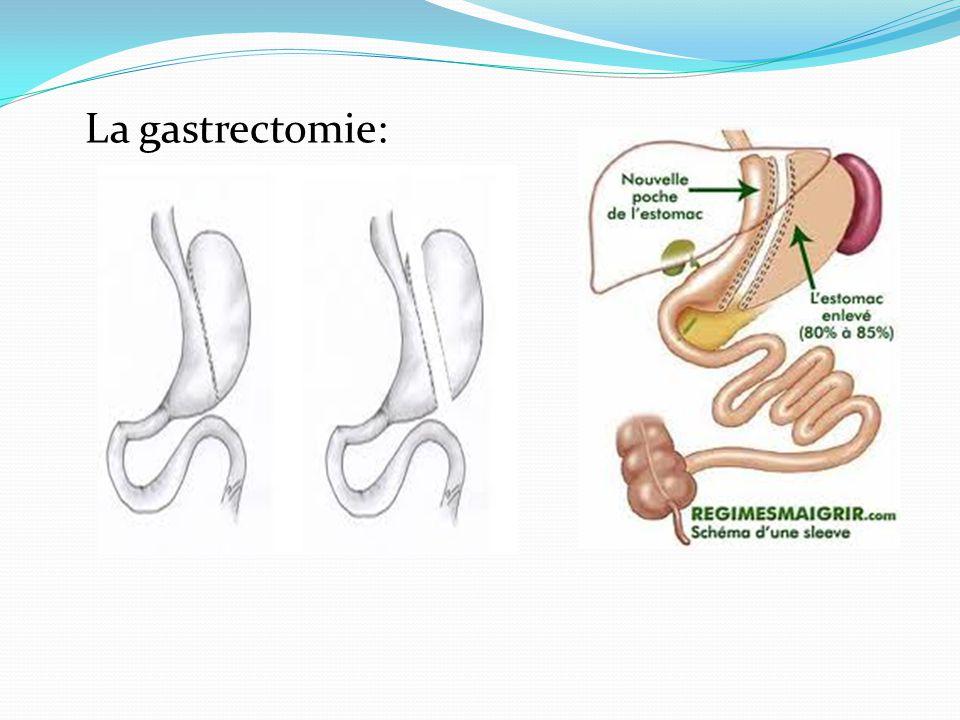 La gastrectomie: