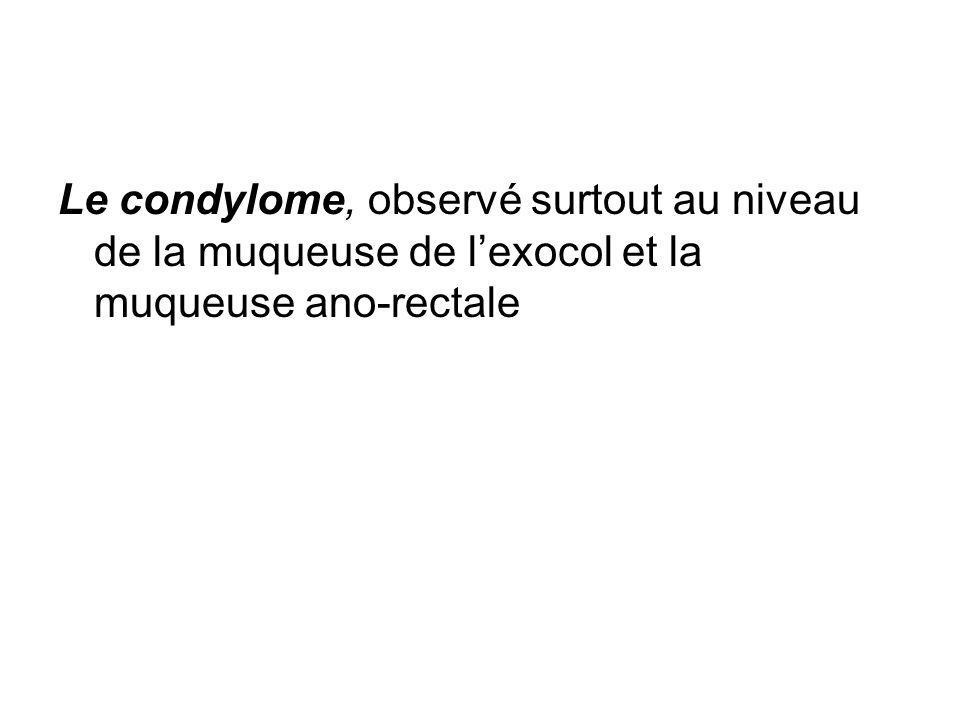 Le condylome, observé surtout au niveau de la muqueuse de lexocol et la muqueuse ano-rectale