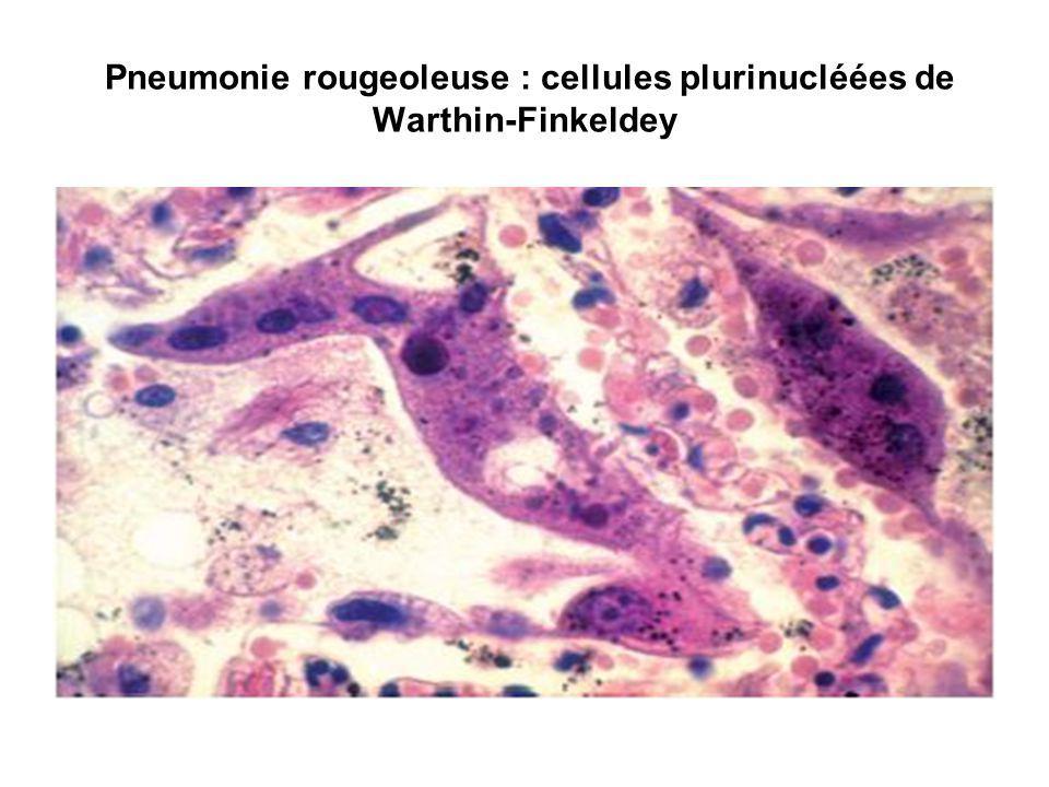 3 -Virus adénotropes : virus de la rubéole et virus d Epstein-Barr Le virus dEpstein-Barr (EBV), responsable de la mononucléose infectieuse, est associé à certaines proliférations tumorales : lymphome B, lymphome Hodgkinien et carcinomes du nasopharynx