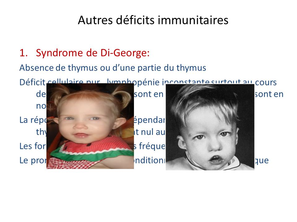 Autres déficits immunitaires 1.Syndrome de Di-George: Absence de thymus ou dune partie du thymus Déficit cellulaire pur, lymphopénie inconstante surto