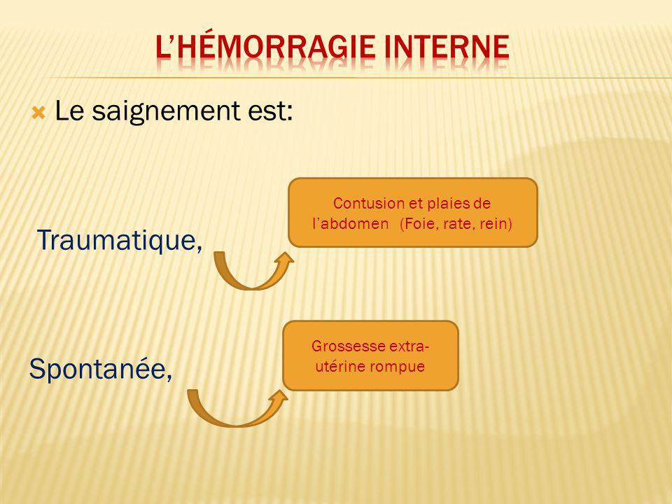 Le saignement se fait soit: Dans une séreuse - Cavité péritonéale Hémo-péritoine - Plèvre Hémo-thorax - Médiastin Hémo-médiastin - Péricarde Hémo-péricarde - Méninges Hgies méningées Dans un espace celluleux - Hématome rétro-péritonéale - Hématome du mésentère - Hématome Extra-dural - Hématome sous-dural