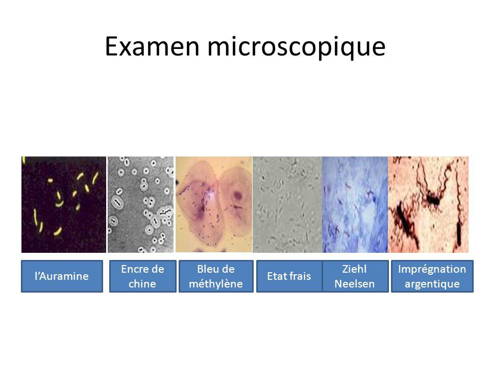 Examen microscopique lAuramine Encre de chine Bleu de méthylène Etat frais Ziehl Neelsen Imprégnation argentique