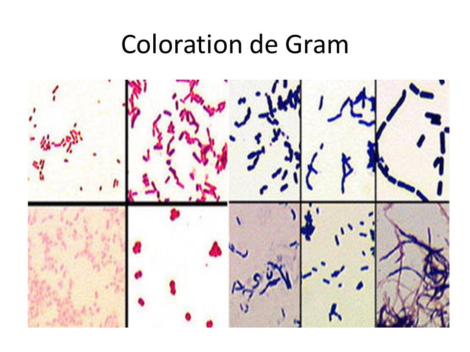 Coloration de Gram: Les 4 types principaux Cocci Gram négatif Bacille Gram négatif Cocci Gram positif Bacille Gram Positif
