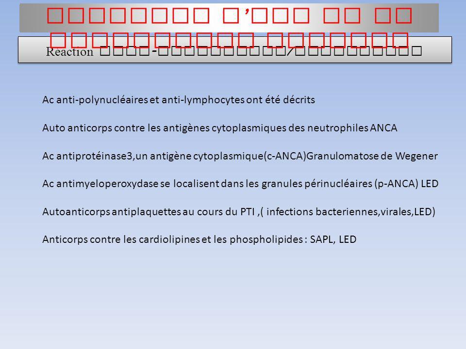 Ac anti-polynucléaires et anti-lymphocytes ont été décrits Auto anticorps contre les antigènes cytoplasmiques des neutrophiles ANCA Ac antiprotéinase3
