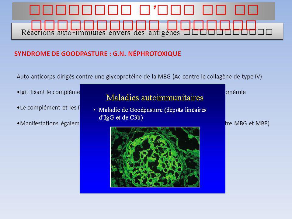 Auto-anticorps dirigés contre une glycoprotéine de la MBG (Ac contre le collagène de type IV) IgG fixant le complément chez 50% des sujets malades Néc