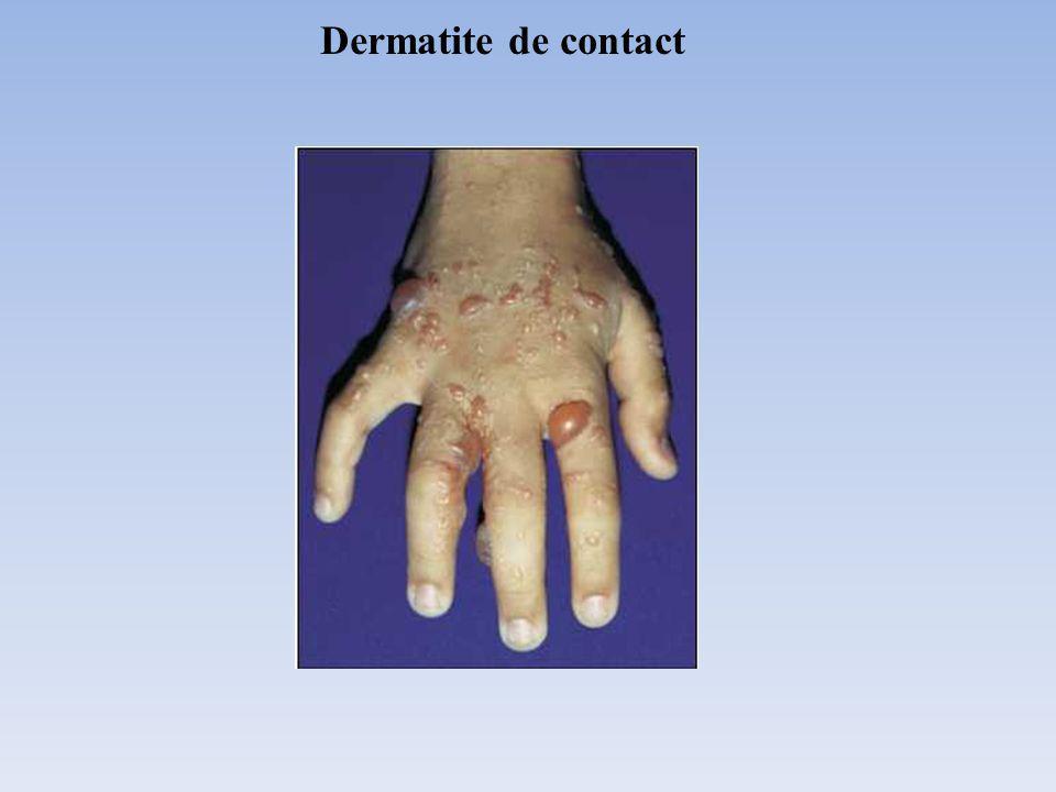 Dermatite de contact