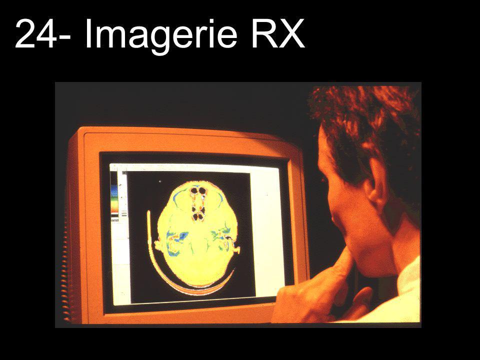 Tomographie assistée par ordinateur (suite) Dans cette technique, un faisceau étroit de rayons X balaie une section transversale du patient et un détecteur suivant la trajectoire du faisceau atténué capte lintensité de celui-ci.