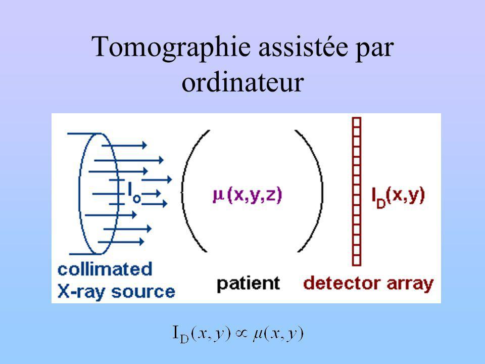 Tomographie assistée par ordinateur