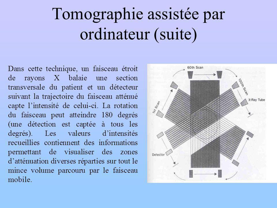Tomographie assistée par ordinateur (suite) Dans cette technique, un faisceau étroit de rayons X balaie une section transversale du patient et un déte