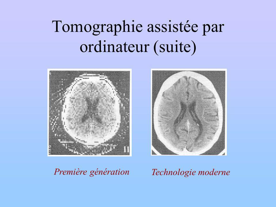 Tomographie assistée par ordinateur (suite) Première génération Technologie moderne