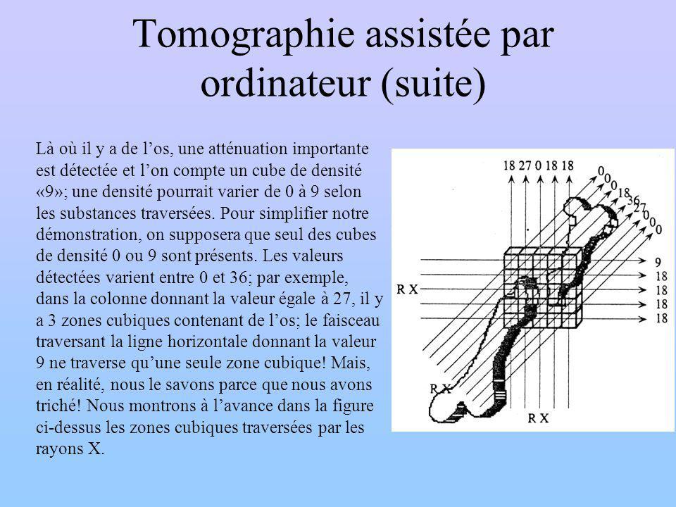 Tomographie assistée par ordinateur (suite) Là où il y a de los, une atténuation importante est détectée et lon compte un cube de densité «9»; une den