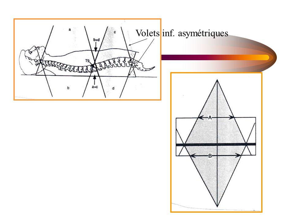 Volets inf. asymétriques