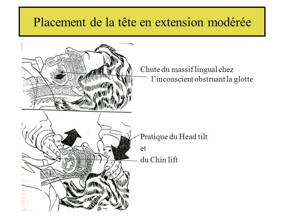 Placement de la tête en extension modérée Chute du massif lingual chez linconscient obstruant la glotte Pratique du Head tilt et du Chin lift