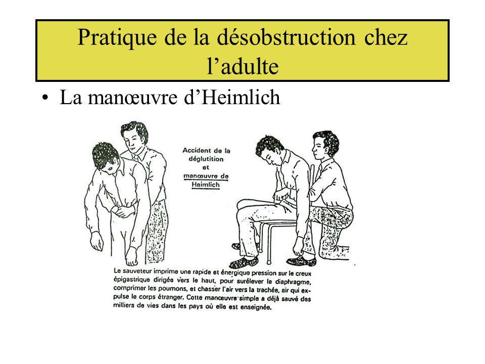 Pratique de la désobstruction chez ladulte La manœuvre dHeimlich