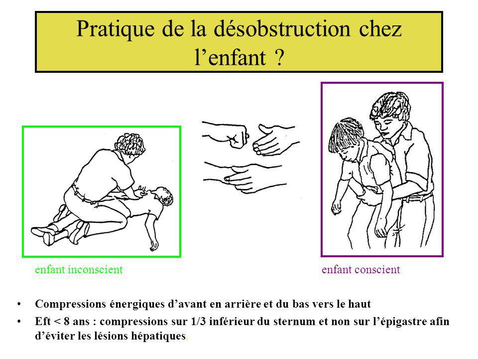 Pratique de la désobstruction chez lenfant ? enfant inconscient enfant conscient Compressions énergiques davant en arrière et du bas vers le haut Eft