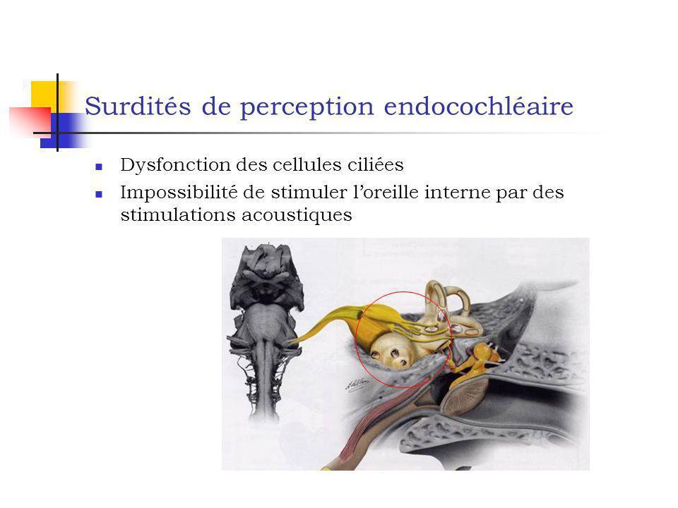 Surdités de perception endocochléaire Dysfonction des cellules ciliées Impossibilité de stimuler loreille interne par des stimulations acoustiques