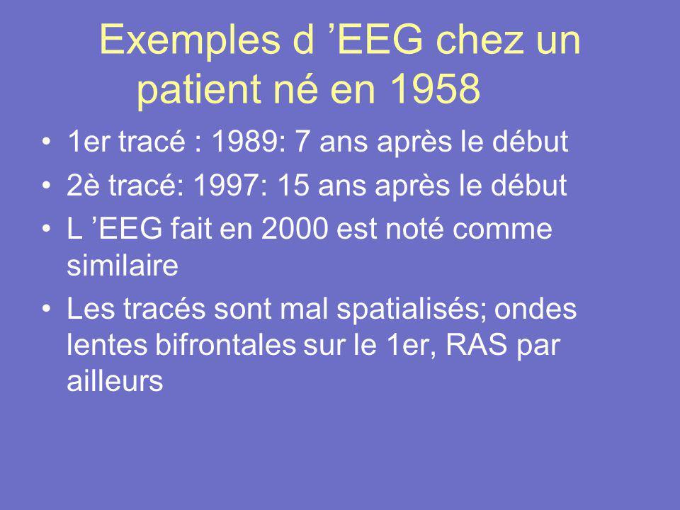 Exemples d EEG chez un patient né en 1958 1er tracé : 1989: 7 ans après le début 2è tracé: 1997: 15 ans après le début L EEG fait en 2000 est noté com