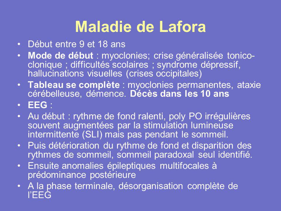 Maladie de Lafora Début entre 9 et 18 ans Mode de début : myoclonies; crise généralisée tonico- clonique ; difficultés scolaires ; syndrome dépressif,