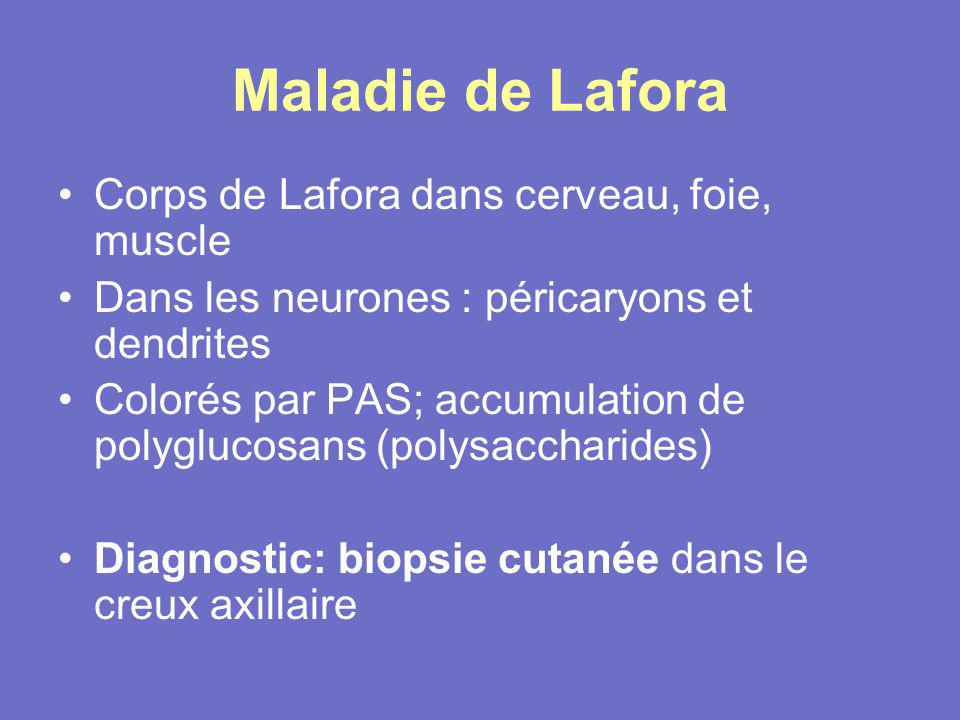 Maladie de Lafora Corps de Lafora dans cerveau, foie, muscle Dans les neurones : péricaryons et dendrites Colorés par PAS; accumulation de polyglucosa