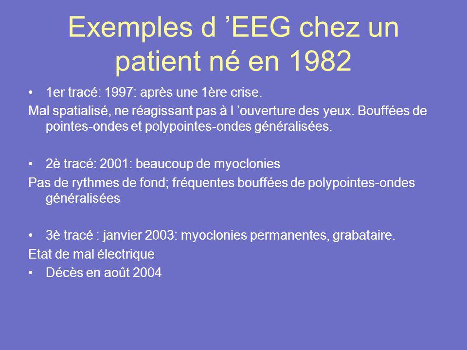 Exemples d EEG chez un patient né en 1982 1er tracé: 1997: après une 1ère crise. Mal spatialisé, ne réagissant pas à l ouverture des yeux. Bouffées de