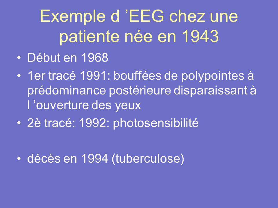 Exemple d EEG chez une patiente née en 1943 Début en 1968 1er tracé 1991: bouffées de polypointes à prédominance postérieure disparaissant à l ouvertu