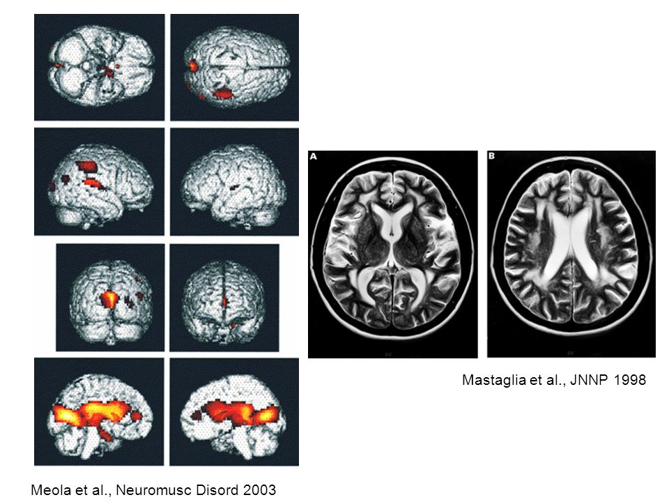 Meola et al., Neuromusc Disord 2003 Mastaglia et al., JNNP 1998