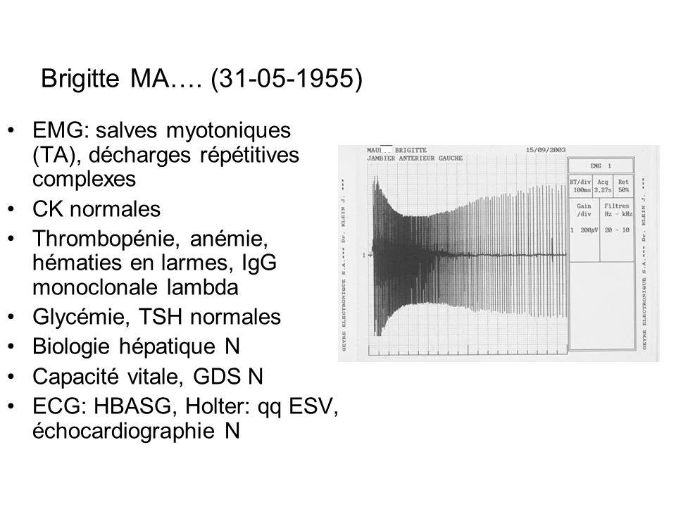 EMG: salves myotoniques (TA), décharges répétitives complexes CK normales Thrombopénie, anémie, hématies en larmes, IgG monoclonale lambda Glycémie, T