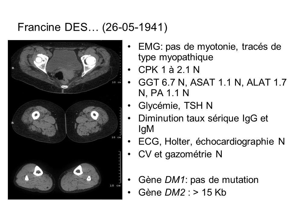 Francine DES… (26-05-1941) EMG: pas de myotonie, tracés de type myopathique CPK 1 à 2.1 N GGT 6.7 N, ASAT 1.1 N, ALAT 1.7 N, PA 1.1 N Glycémie, TSH N