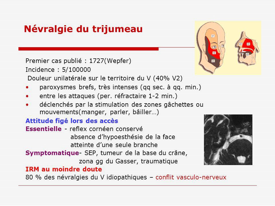 Névralgie du trijumeau Premier cas publié : 1727(Wepfer) Incidence : 5/100000 Douleur unilatérale sur le territoire du V (40% V2) paroxysmes brefs, tr