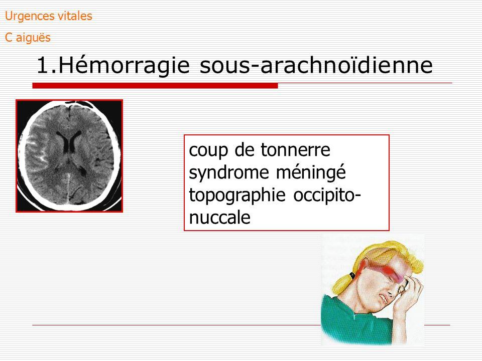 1.Hémorragie sous-arachnoïdienne coup de tonnerre syndrome méningé topographie occipito- nuccale Urgences vitales C aiguës