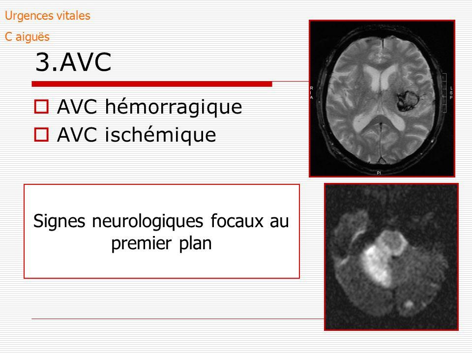 3.AVC AVC hémorragique AVC ischémique Signes neurologiques focaux au premier plan Urgences vitales C aiguës