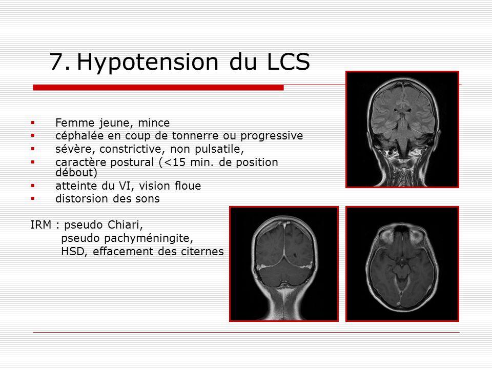 7. Hypotension du LCS Femme jeune, mince céphalée en coup de tonnerre ou progressive sévère, constrictive, non pulsatile, caractère postural (<15 min.