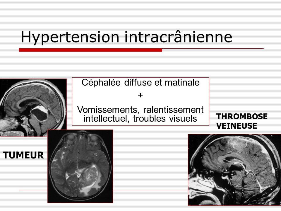 Hypertension intracrânienne Céphalée diffuse et matinale + Vomissements, ralentissement intellectuel, troubles visuels TUMEUR THROMBOSE VEINEUSE