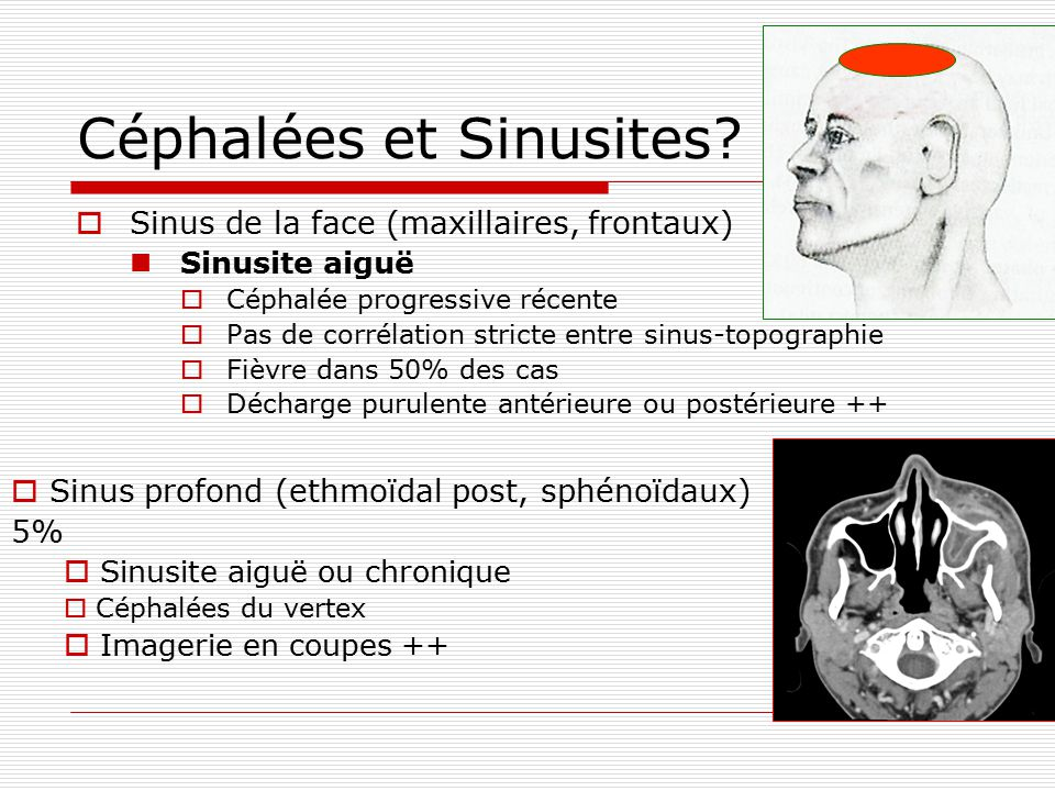 Céphalées et Sinusites? Sinus de la face (maxillaires, frontaux) Sinusite aiguë Céphalée progressive récente Pas de corrélation stricte entre sinus-to