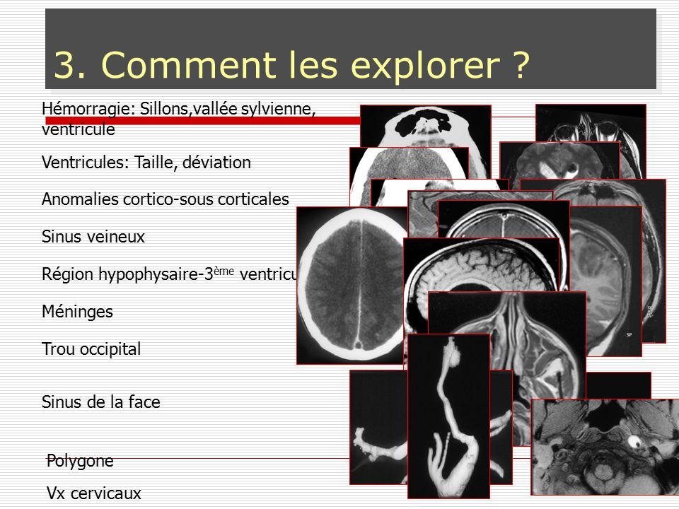 Comment ? 3. Comment les explorer ? Hémorragie: Sillons,vallée sylvienne, ventricule Région hypophysaire-3 ème ventricule Sinus veineux Ventricules: T