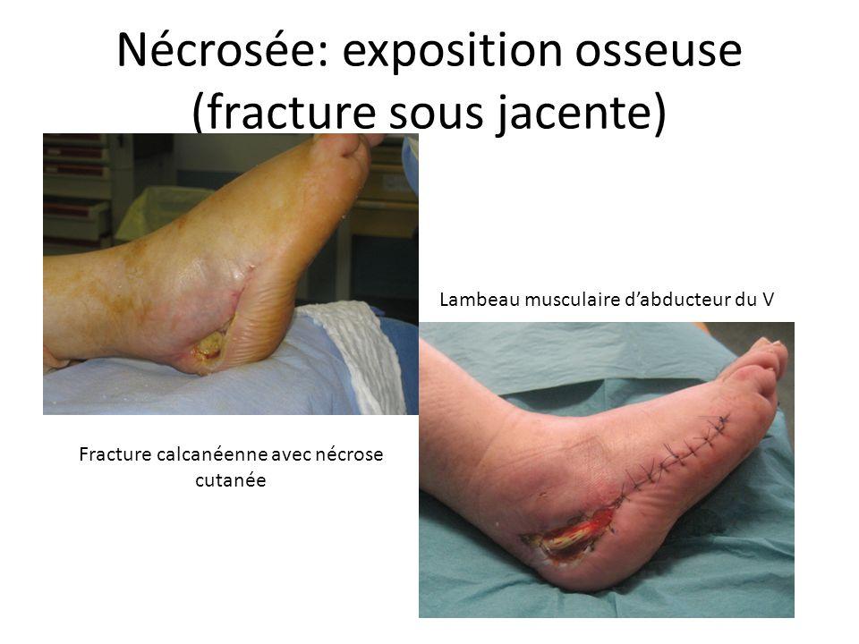 Nécrosée: exposition osseuse (fracture sous jacente) Fracture calcanéenne avec nécrose cutanée Lambeau musculaire dabducteur du V
