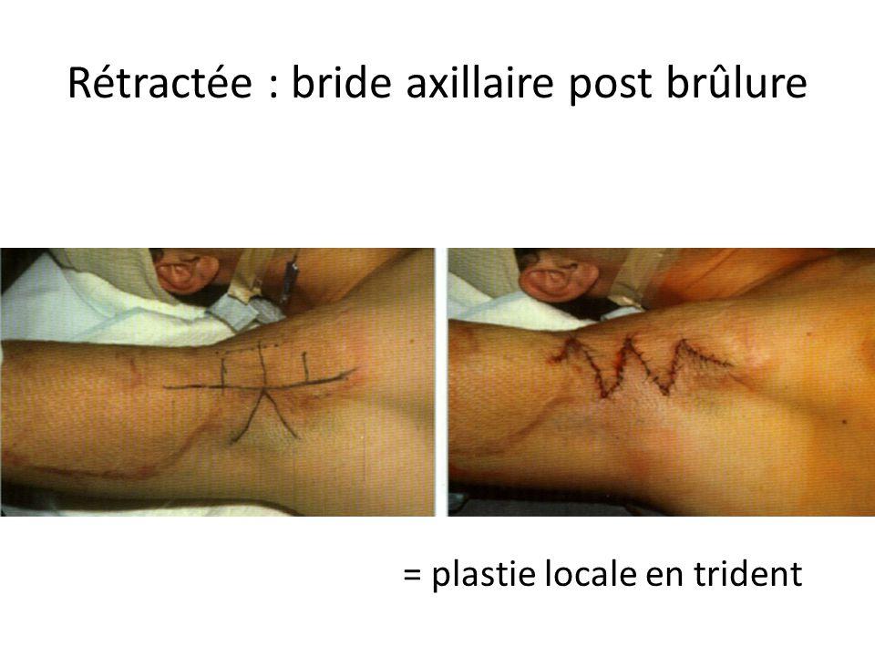 Rétractée : bride axillaire post brûlure = plastie locale en trident