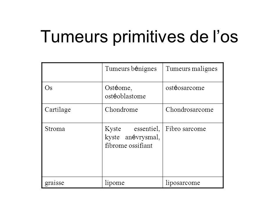 Tumeurs primitives de los Tumeurs b é nignes Tumeurs malignes Os Ost é ome, ost é oblastome ost é osarcome CartilageChondromeChondrosarcome StromaKyste essentiel, kyste an é vrysmal, fibrome ossifiant Fibro sarcome graisselipomeliposarcome