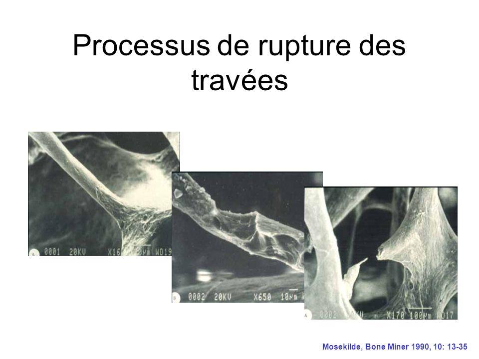 Processus de rupture des travées Mosekilde, Bone Miner 1990, 10: 13-35
