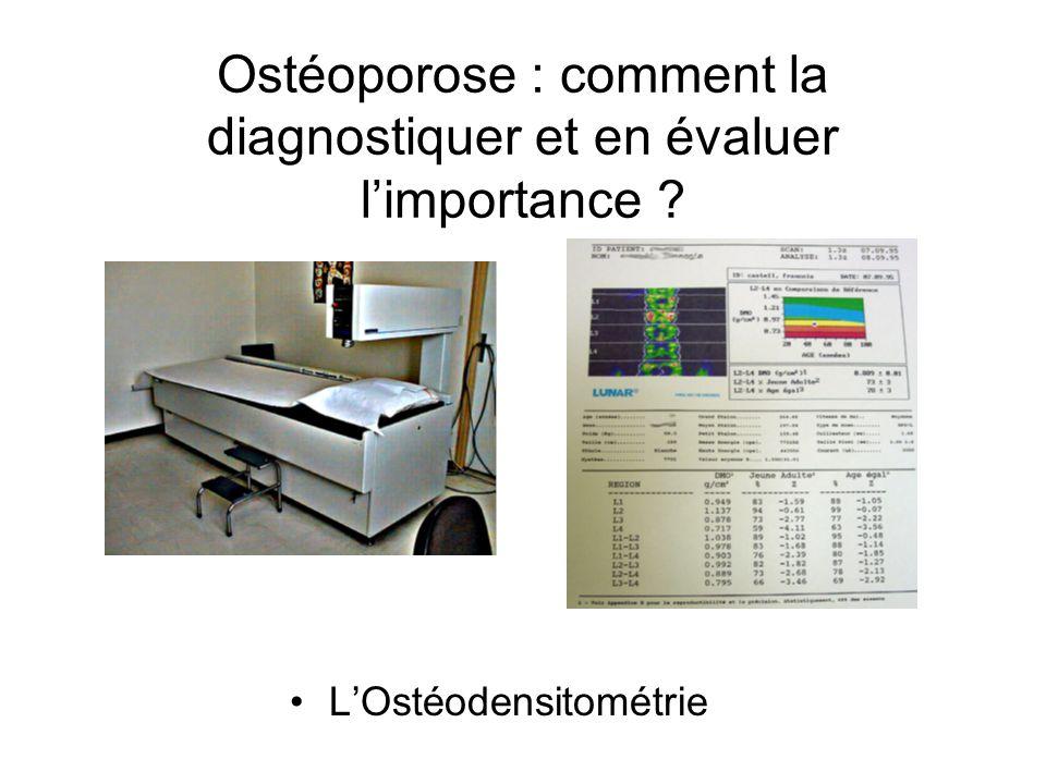 Ostéoporose : comment la diagnostiquer et en évaluer limportance ? LOstéodensitométrie