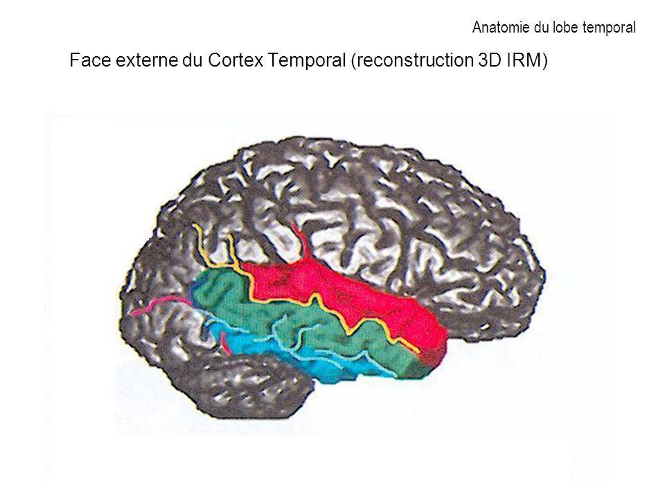 Anatomie du lobe temporal Face externe du Cortex Temporal (reconstruction 3D IRM)
