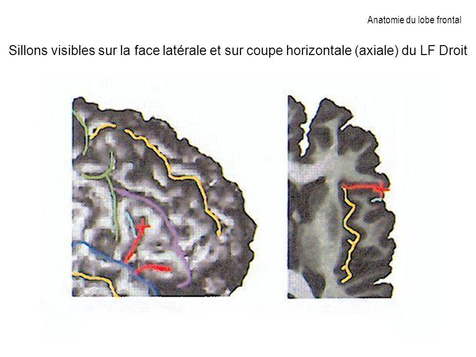 Anatomie du lobe frontal Sillons visibles sur la face latérale et sur coupe horizontale (axiale) du LF Droit
