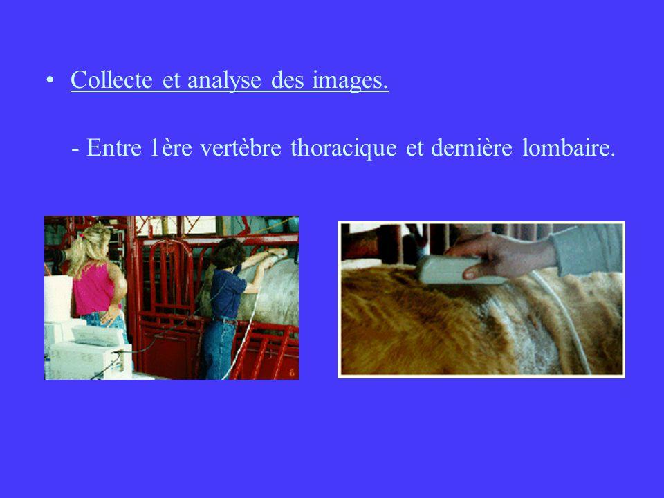 Collecte et analyse des images. - Entre 1ère vertèbre thoracique et dernière lombaire.
